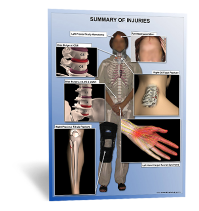 Injuries Overview
