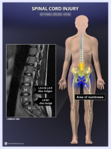 Spinal Cord Injury - Numbness in Genital Region