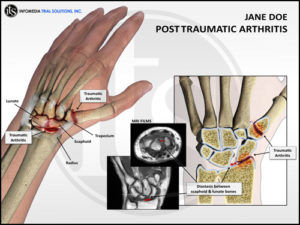 Post-Traumatic Arthritis