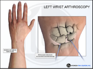 Left Wrist Arthroscopy