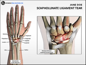 Scapholunate Ligament Tear