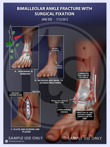 Ankle Fracture – Bimalleolar Ankle Fracture with Surgical Fixation –  INFOMEDIA TRIAL SOLUTIONS, INC.